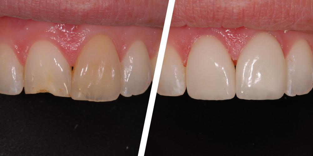 Crowns/Bridges - Applecross Dental - Nanaimo BC